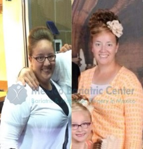 before-after-cindy